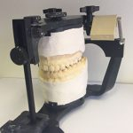 Mounted Casts on a semi-adjustable articulator
