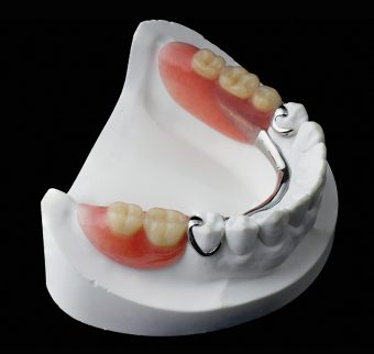 Removable partial chrome cobalt denture