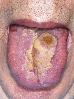 Clinical photograph of the tongue ulceration at initial examination