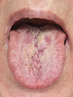Clinical photograph of the tongue at two-week review appointment